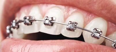 ortodontinis-gydymas-psl